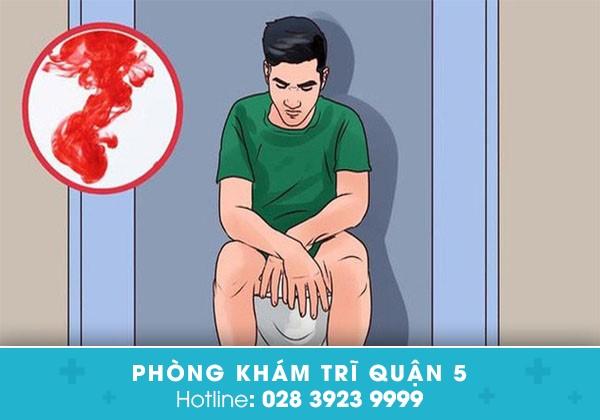 Chảy máu hậu môn cảnh báo bệnh nguy hiểm chớ chủ quan