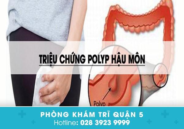 polyp-hau-mon-nguyen-nhan-bieu-hien-va-bien-chung-cua-benh